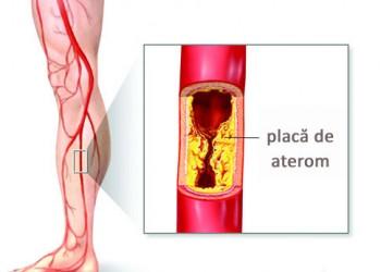 boala arterială periferică vs venoasă