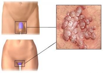condiloame pe simptomele uterului