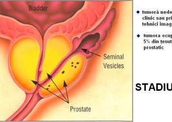 dimensiunea prostatei normale)