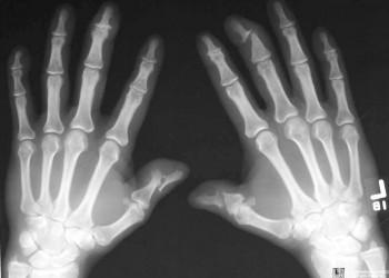 Tratamentul artrozei cu gua