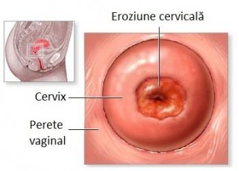 în cazul în care un copil este vaccinat împotriva papilomelor hpv symptoms on male