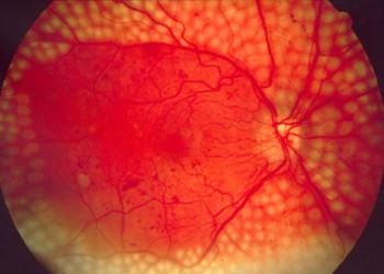 patologia deficienței vizuale zi de vedere în 2021