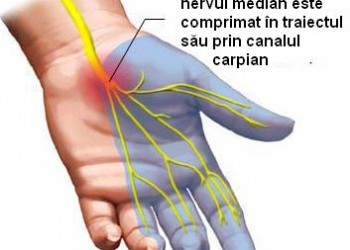 sindrom de canal carpian bilateral)